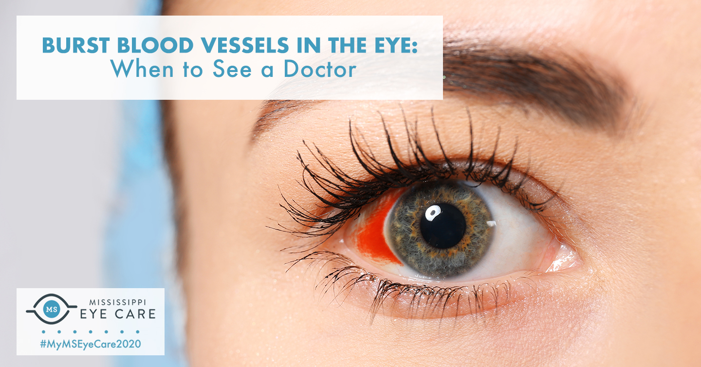 Burst Blood Vessels in the Eye: When to See a Doctor