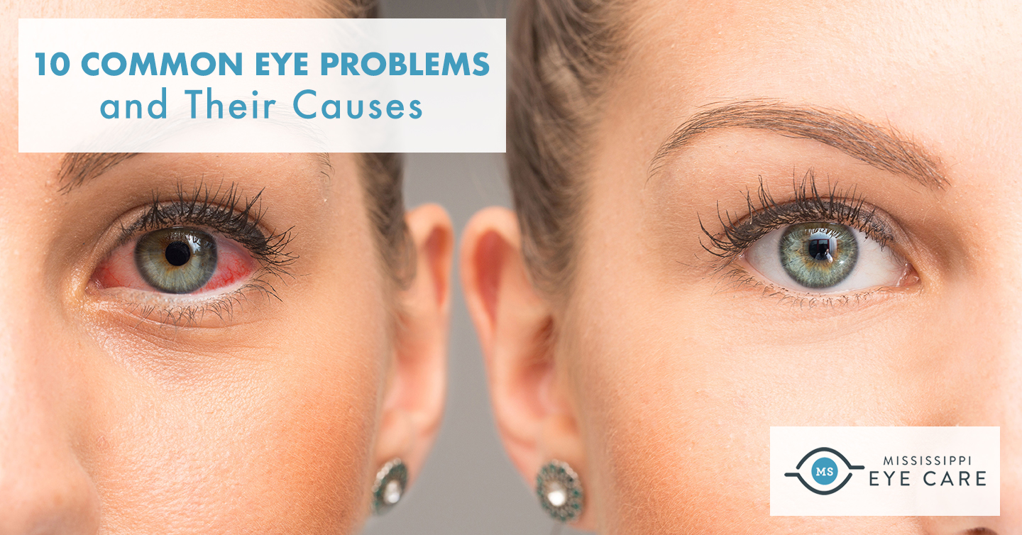 10 Common Eye Problems and Their Causes